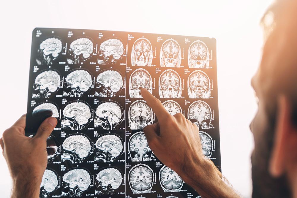 Neurolog | Poznaj naszą szeroką ofertę i umów wizytę już dziś. Telefon: +48 533 702 703, e-mail: recepcja@royalmedonline.com